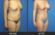 abdominoplasty-p12-oblique-right-2-med