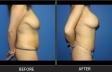 abdominoplasty-p12-side-right-med
