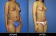 abdominoplasty-p20-oblique2-med