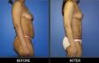 abdominoplasty-p20-side2-med