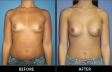 breast-augment-p01-front-med