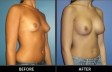 breast-augment-p01-oblique-med
