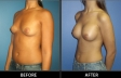 breast-augment-p01-oblique2-med