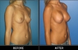breast-augment-p02-oblique-med