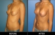 breast-augment-p02-oblique2-med