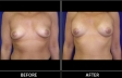 breast-augment-p03-front-med