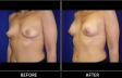 breast-augment-p03-oblique-med