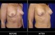 breast-augment-p03-oblique2-med