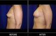 breast-augment-p03-side-med
