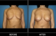 breast-augment-p04-front-med