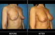 breast-augment-p04-oblique-med