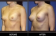 breast-augment-p05-oblique-med