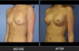breast-augment-p06-oblique-left-med