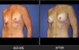 breast-augment-p07-oblique-left-med