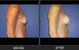 breast-augment-p07-side-right-med