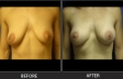 breast-augment-p08-front-med