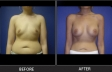 breast-augment-p09-front-med