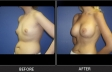 breast-augment-p09-oblique-left-med