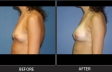 breast-augment-p10-side-left-med