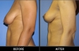 breast-lift-p01-side-med