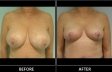 breast-lift-p03-front-med