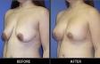 breast-lift-p04-oblique-med