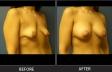 breastlift-p101103-oblique-left-med