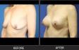breastlift-p6670-oblique-left-med