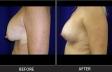 breastlift-p71-side-left-med