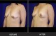 breastlift-p8385-oblique-left-med