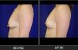 breastlift-p8385-side-left-med