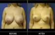 breast-reduction-p01-front-med