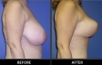 breast-reduction-p01-side-med