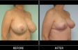 breast-reduction-p03-oblique-med