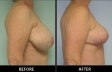 breast-reduction-p03-side-med