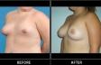 breast-irreg-p02-oblique-med