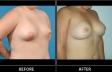 breast-irreg-p02-oblique2-med