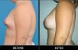 breast-irreg-p02-side-med